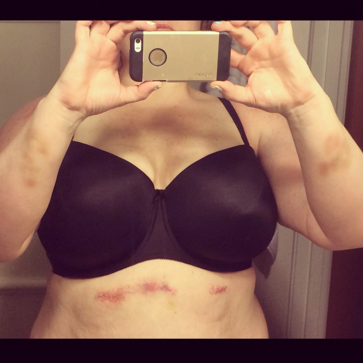 StrongWoman Bruises on PaleoParents